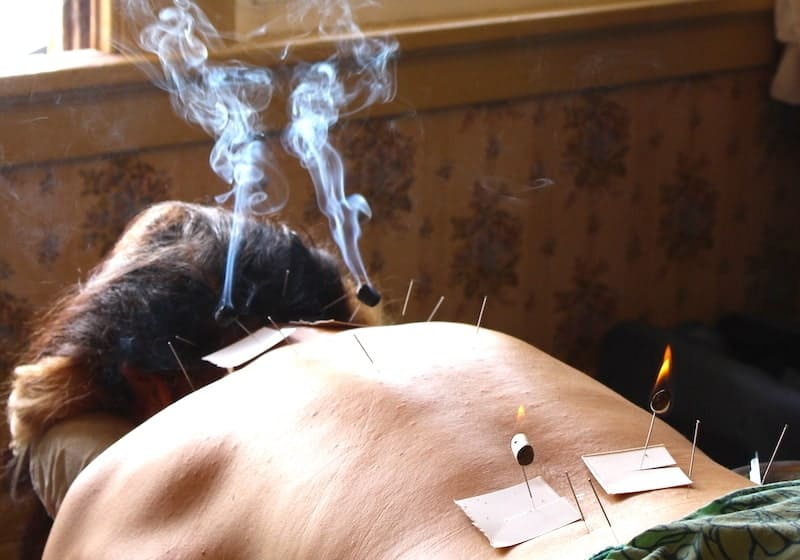 Earthing Acupuncture Package